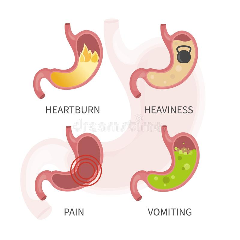 Krankheiten des Magens stock abbildung