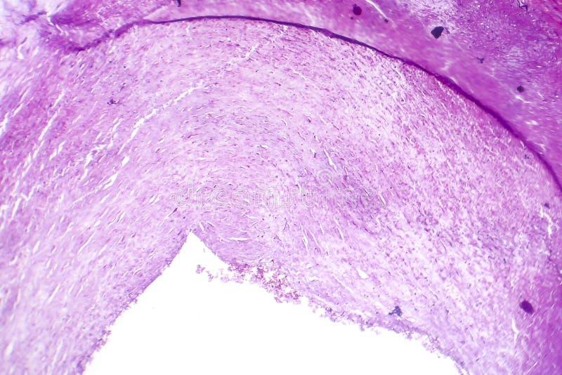 Kranzartige Atherosclerose, heller Mikrograph stockbild