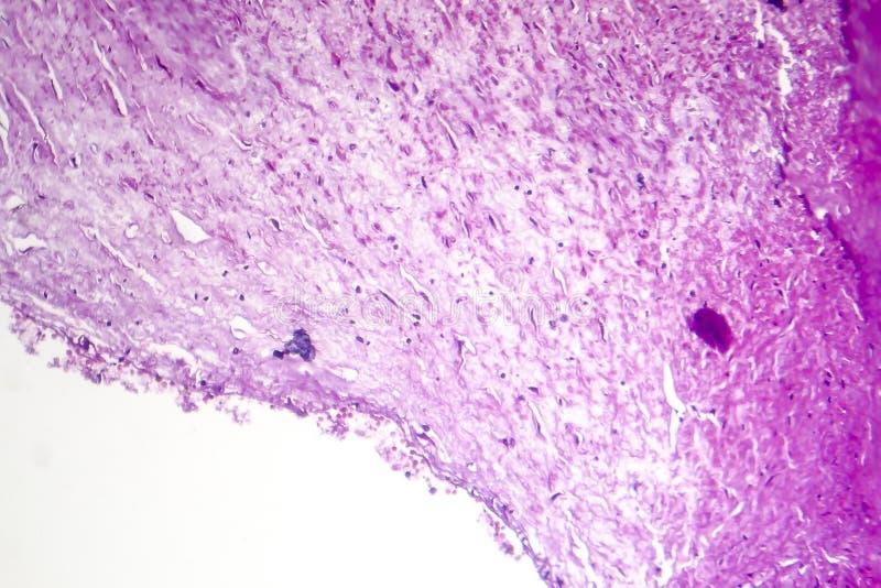 Kranzartige Atherosclerose, heller Mikrograph lizenzfreie stockfotos
