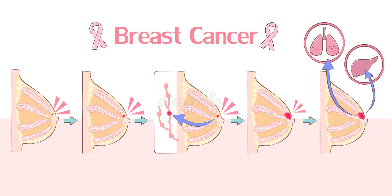 Kreskówka nowotworu piersi pojęcie ilustracja wektor