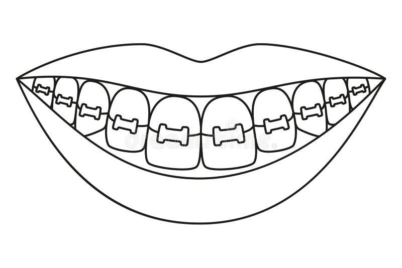 Kreskowej sztuki czarny i biały zdrowy uśmiech w brasach ilustracja wektor
