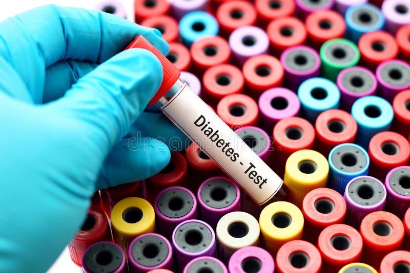 Krew dla cukrzyca testa obrazy stock