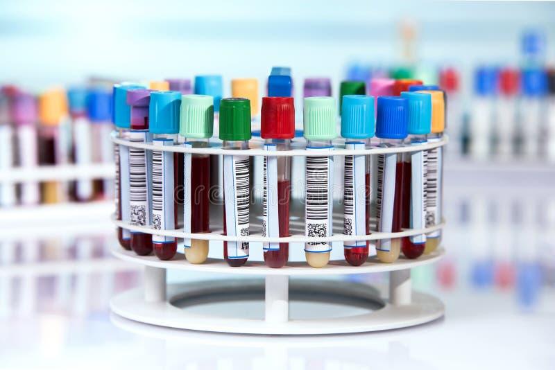 Krew tubki z etykietkami w kółkowej tacy zdjęcia stock