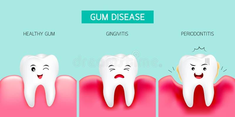 Krok gumowa choroba Zdrowy ząb i gingivitis ilustracja wektor