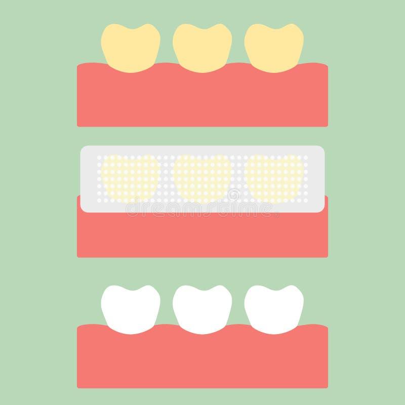 Krok użycie zęby bieleje pasek, kolor żółty biały ząb ilustracja wektor