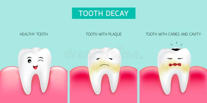 Krok zębu gnicia formacja Zdrowy ząb, tworzący stomatologiczną plakietę, próchnicy i zagłębienie w końcu royalty ilustracja