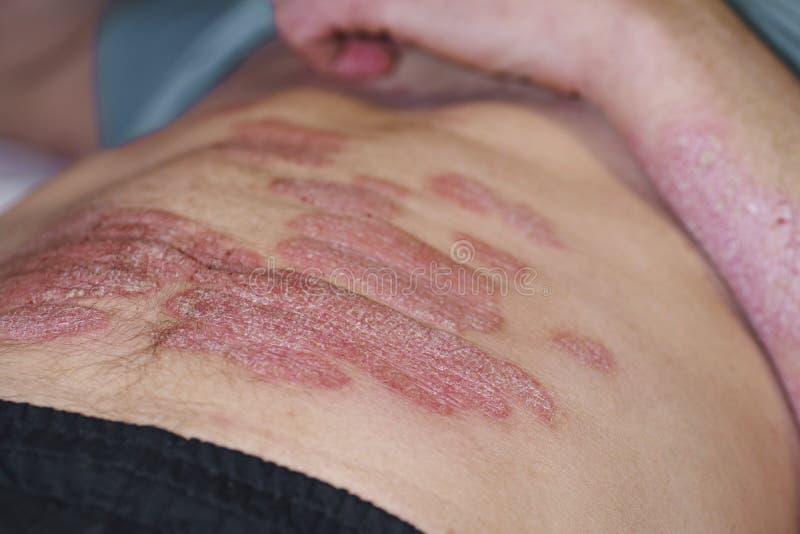 Kroppen av en man täckas med omfattande psoriasis En man ligger på hans baksida och på hans psoriasis arkivbild