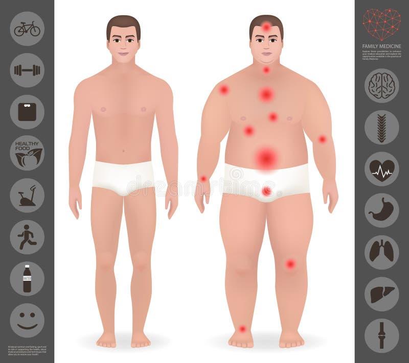 Kroppen av en man, tjockt och gör, smärtar punkter, detaljerad vektorico tunnare vektor illustrationer
