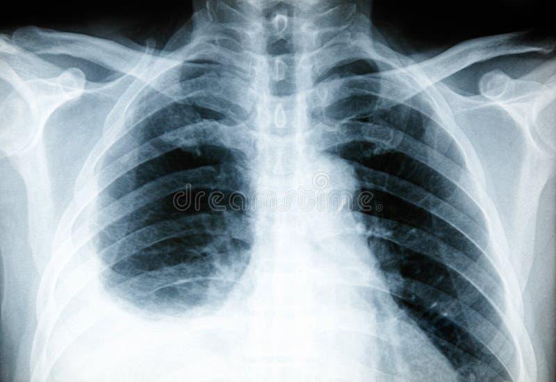 Kroppröntgenstråle arkivfoton