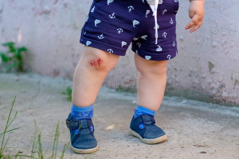 Krwista abrazja na dziecka ` s kolanie obrazy royalty free