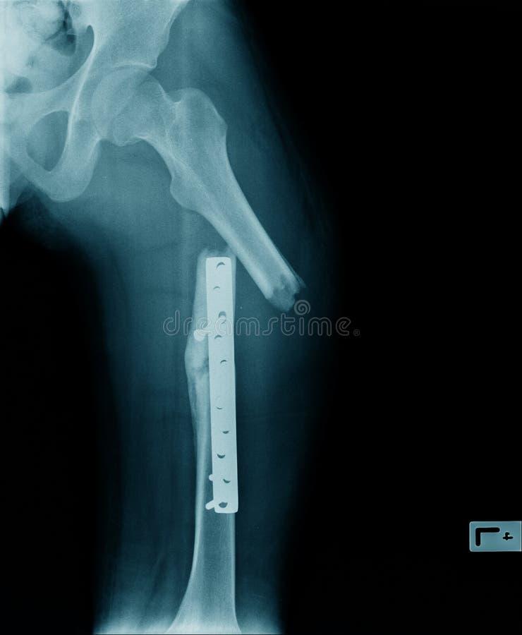 Kuggningplatta av fumurbenfixering, röntgenstrålelårbenben med kuggningpate royaltyfri bild