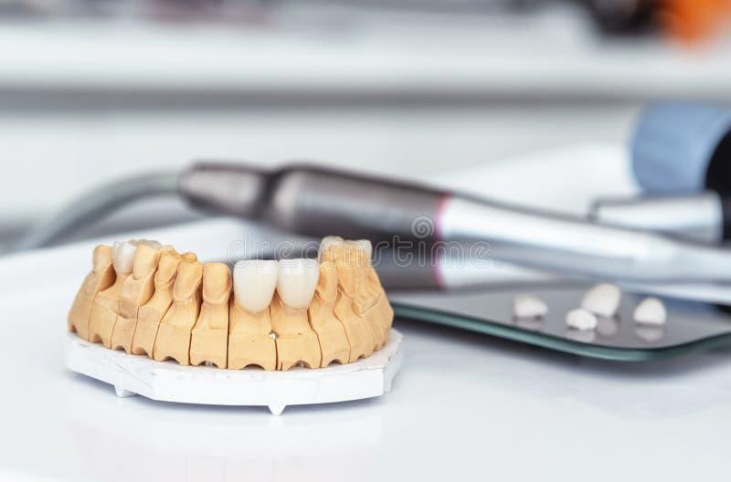 Kunstmatige kaak met tandvernisjes en kronen in het bureau bij de tandarts royalty-vrije stock foto