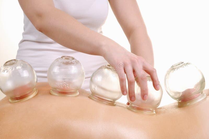 Kupa massage backen av en kvinna arkivfoto
