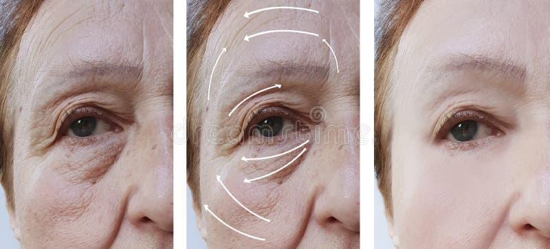 Kvinnaåldringen vänder mot hudskrynklor som före och efter hydratiserar tillvägagångssätt för cosmetologyföryngring, pil arkivbilder