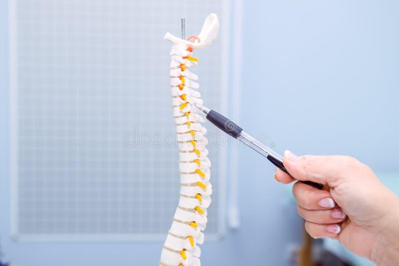 Kvinna för medicinsk doktor för Closeup som pekar på cervikal inbindningsmodell vart begreppshanden har den sena pillen för sjukv arkivbild