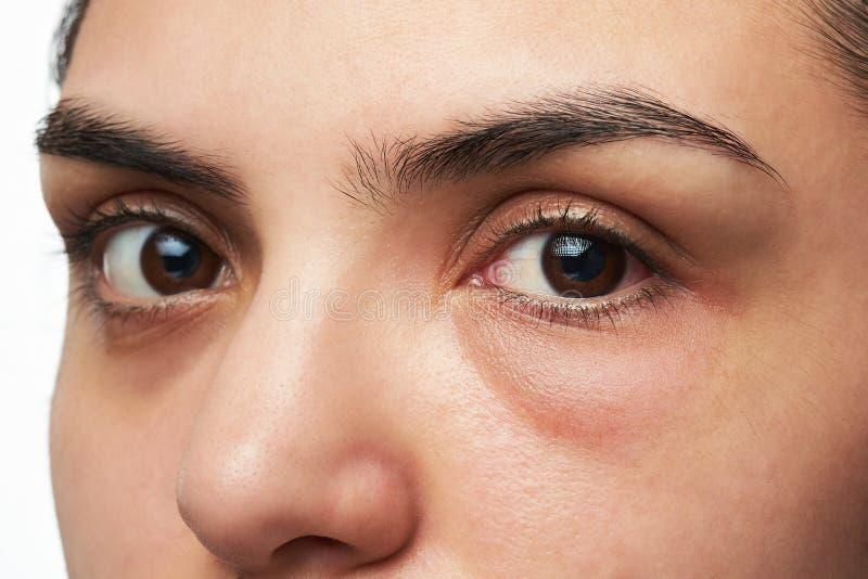 Kvinna med det röda ögat royaltyfri bild