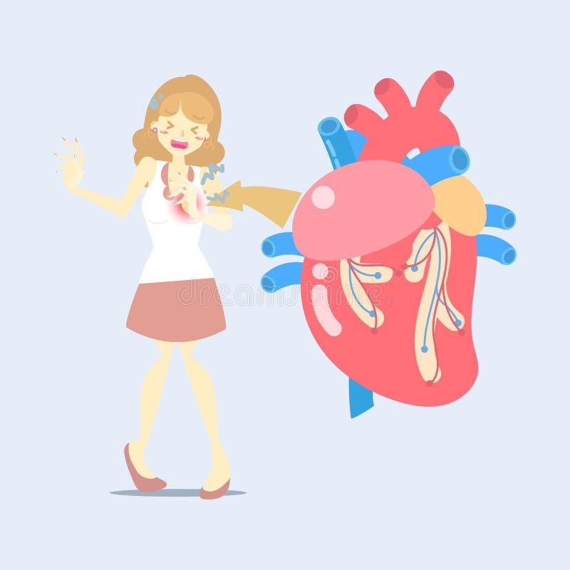 kvinna med hjärtafel, attacksjukdom, snabb hjärtahastighet, medicinsk för kroppsdelnervsystem för inre organ hälsovård för anatom stock illustrationer