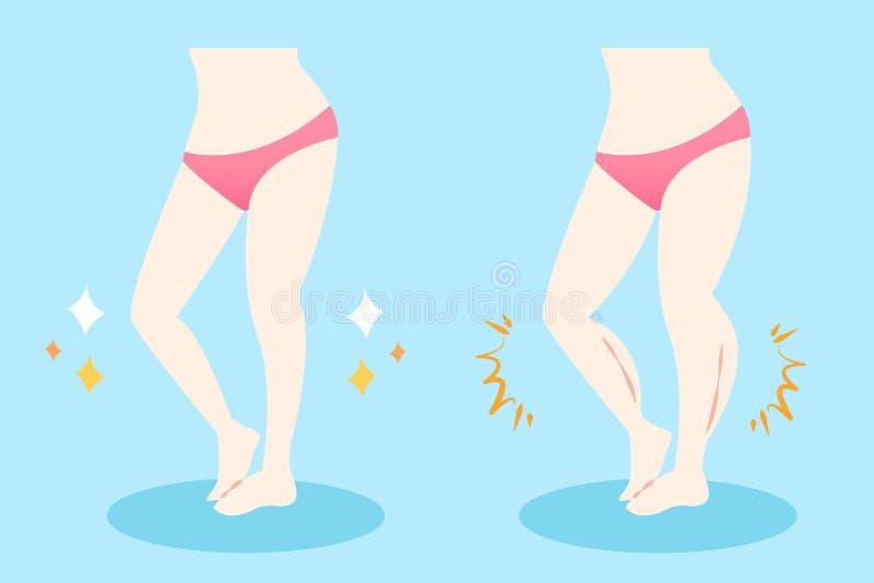 Kvinna med muskulösa kalvar stock illustrationer