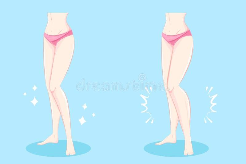 Kvinna med muskulösa kalvar royaltyfri illustrationer