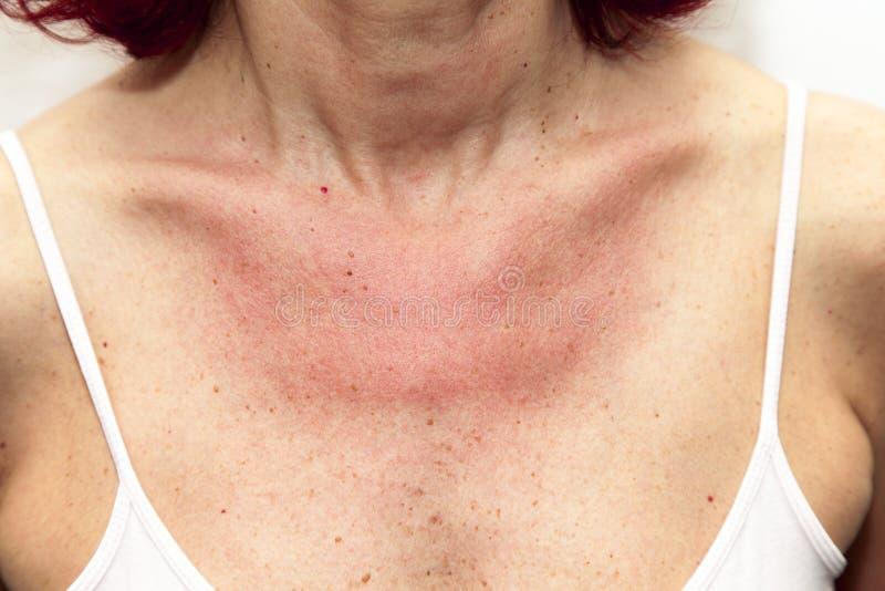 Kvinna med solbrännor och allergisk reaktion arkivfoton