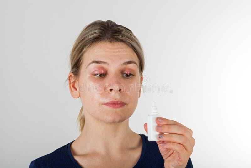 Kvinna med sträng ögoninfektion royaltyfria foton