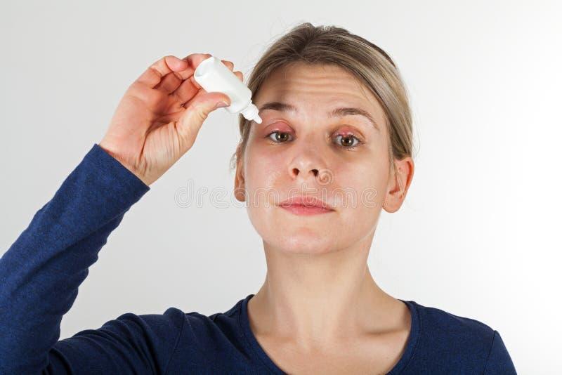 Kvinna med sträng ögoninfektion arkivfoton