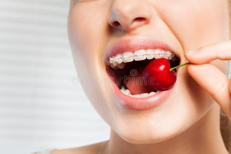 Kvinna med tand- konsoler som biter av den röda körsbäret royaltyfri fotografi