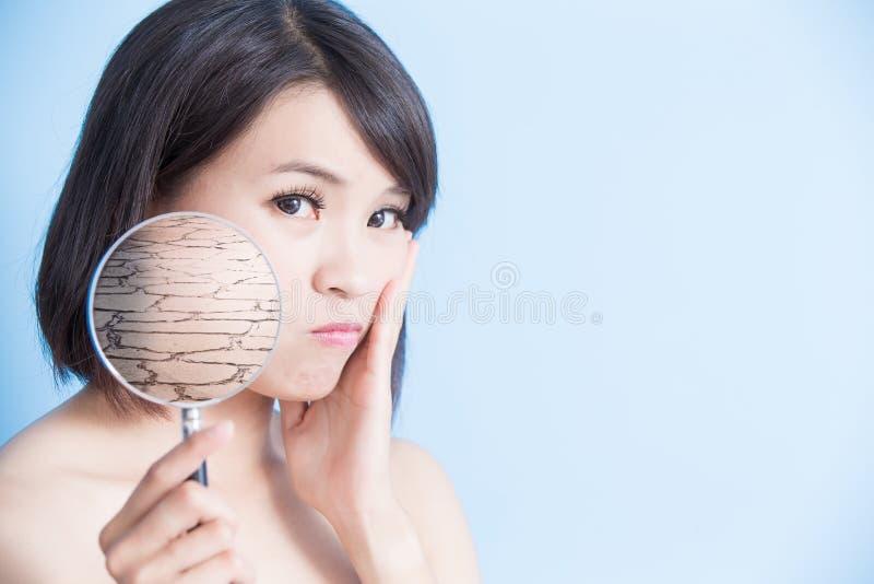 Kvinna med torr hud arkivfoto