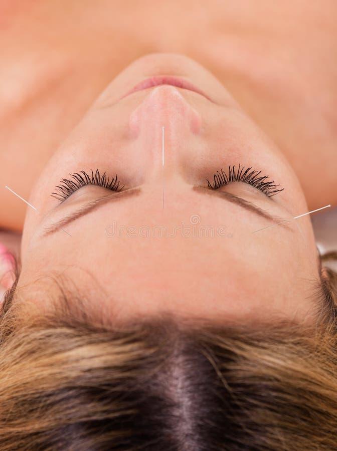 Kvinna som genomgår akupunkturbehandling fotografering för bildbyråer