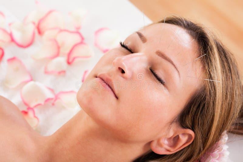 Kvinna som genomgår akupunkturbehandling arkivfoto