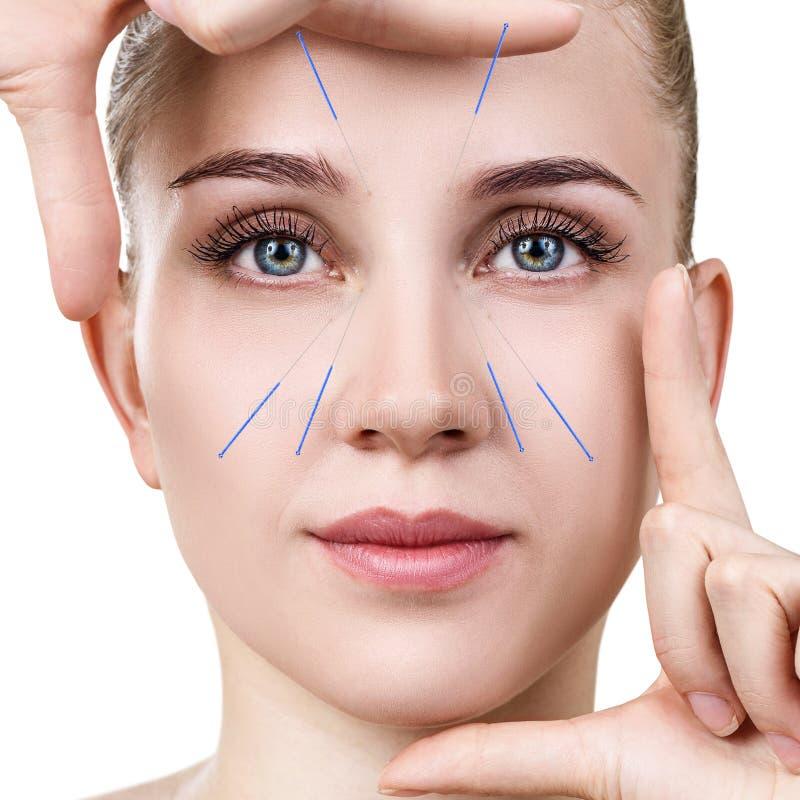 Kvinna som genomgår akupunkturbehandling arkivfoton