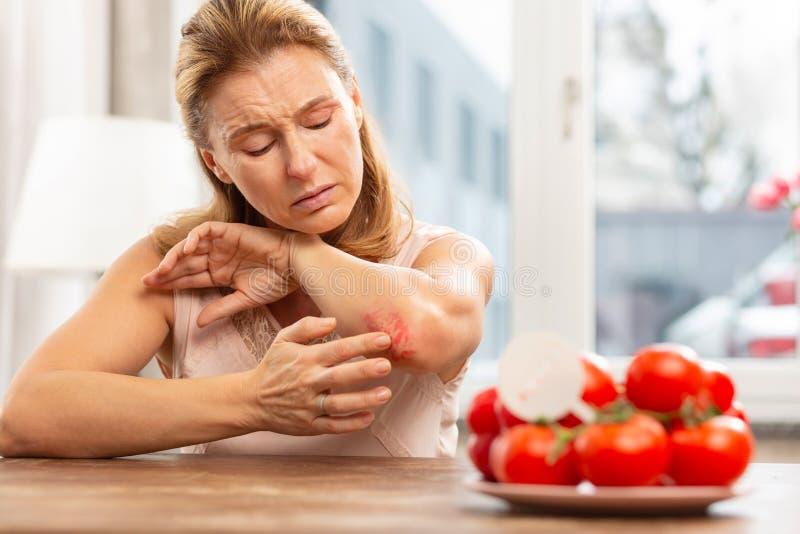 Kvinna som har överilat och skrapor på armbåge på grund av allergi arkivfoton