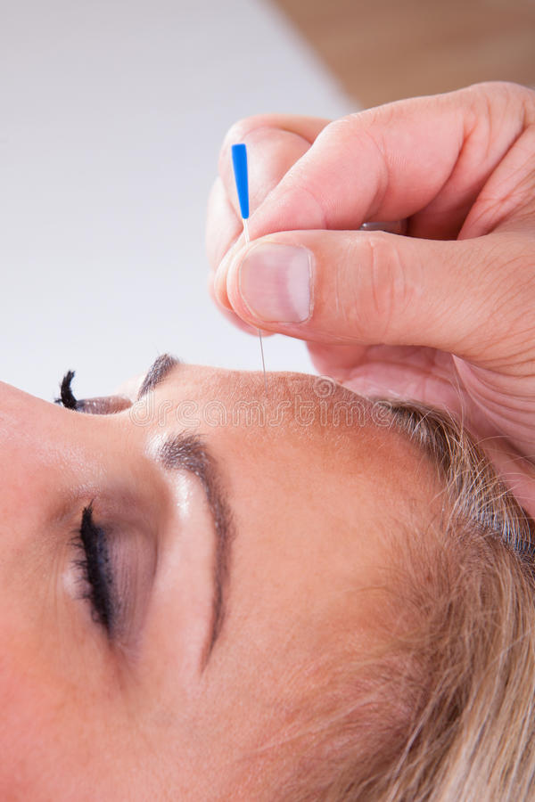 Kvinna som mottar en akupunkturterapi royaltyfri fotografi