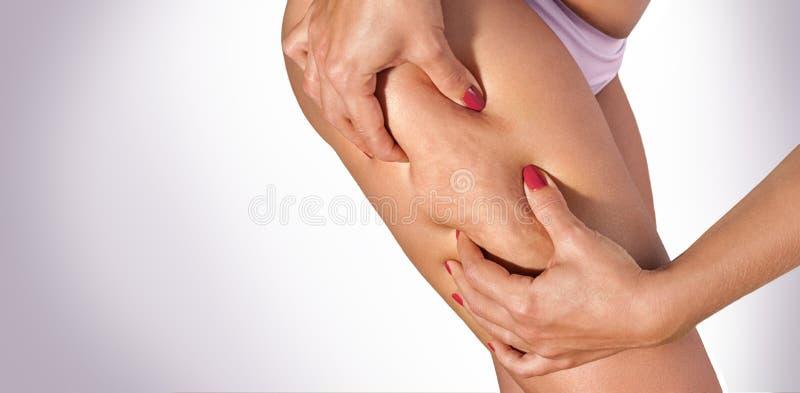 Kvinna som pressar cellulite på hennes lår fotografering för bildbyråer