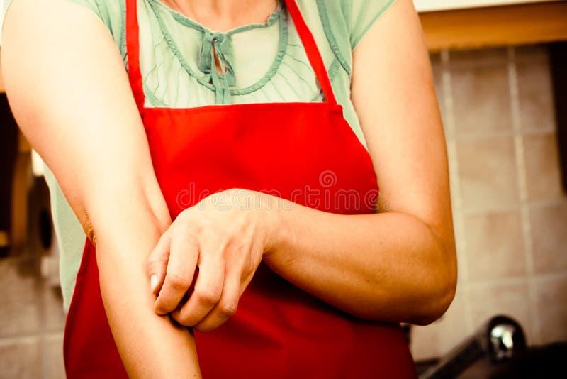 Kvinna som skrapar den kliande armen allergin arkivbild
