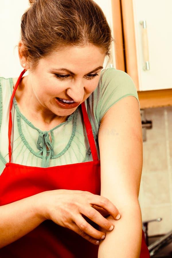Kvinna som skrapar den kliande armen allergin royaltyfri foto