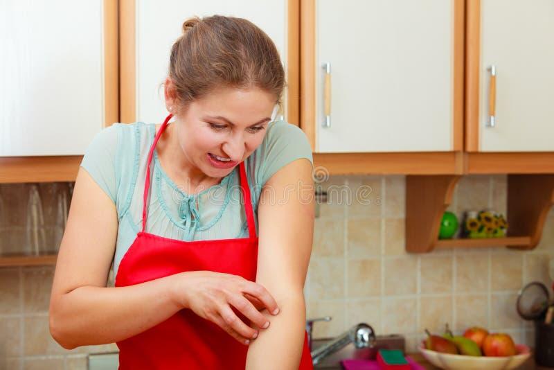 Kvinna som skrapar den kliande armen allergin royaltyfri bild