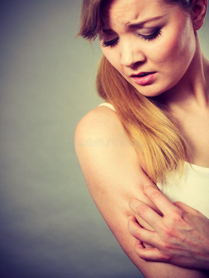 Kvinna som skrapar hennes kliande arm med den överilade allergin fotografering för bildbyråer