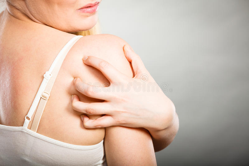 kvinna som skrapar hennes kliande baksida med den överilade allergin arkivfoto