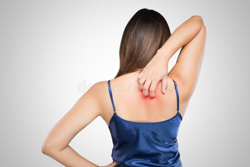 kvinna som skrapar hennes kliande baksida med den överilade allergin arkivbild