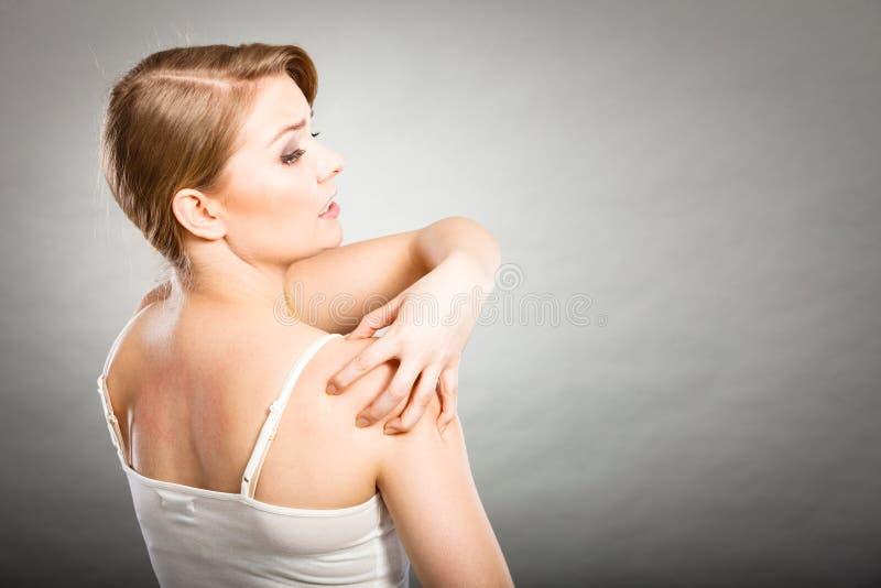 kvinna som skrapar hennes kliande baksida med den överilade allergin royaltyfria bilder