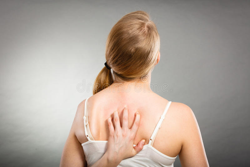 kvinna som skrapar hennes kliande baksida med den överilade allergin arkivfoton