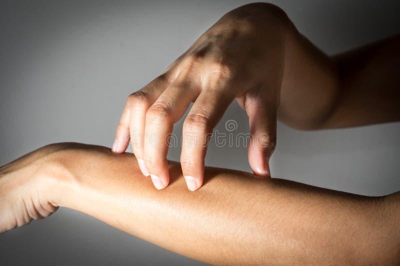 Kvinna som skrapar underarmenhud royaltyfri fotografi