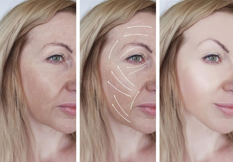 Kvinnaansiktsbehandlingen rynkar korrigeringskosmetologresultat som före och efter lyfter tillvägagångssättpilen för skillnaden royaltyfri fotografi