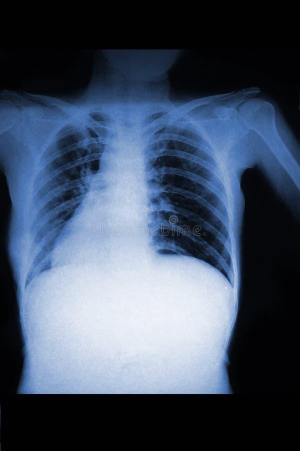 Kvinnabröstkorgröntgenstråle royaltyfria bilder
