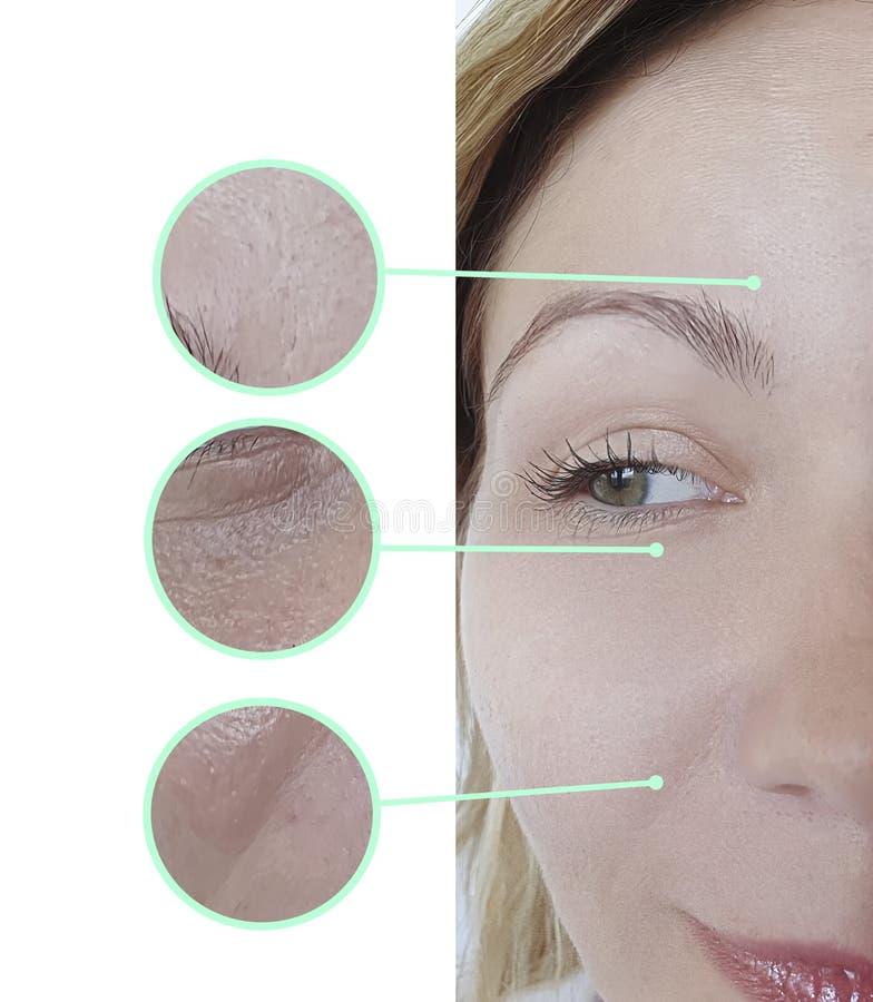 Kvinnaframsidaögat rynkar borttagning före och efter som hydratiserar föryngringcosmetologybehandling royaltyfri foto