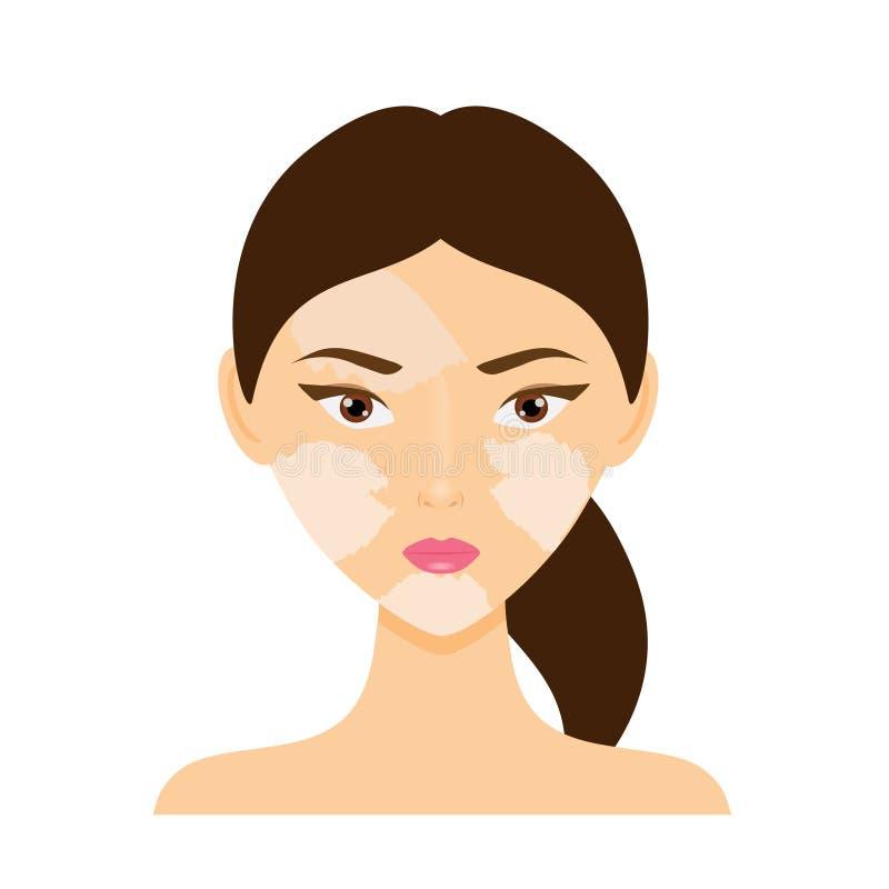 Kvinnaframsida med vitiligohudsjukdomen vektor illustrationer