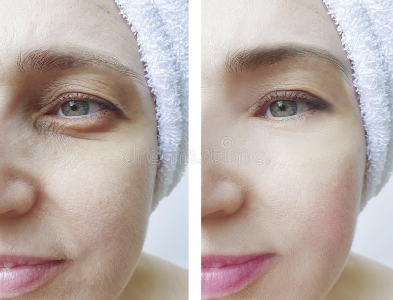 Kvinnaframsidan rynkar att bågna lyftande korrigering för föryngring före och efter royaltyfria foton