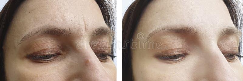 Kvinnaframsidan rynkar behandling för korrigering för föryngringregenereringterapi före och efter royaltyfria bilder