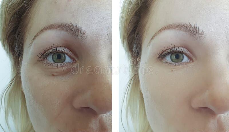 Kvinnaframsidan rynkar borttagning före och efter som hydratiserar föryngringcosmetologybehandling arkivfoton